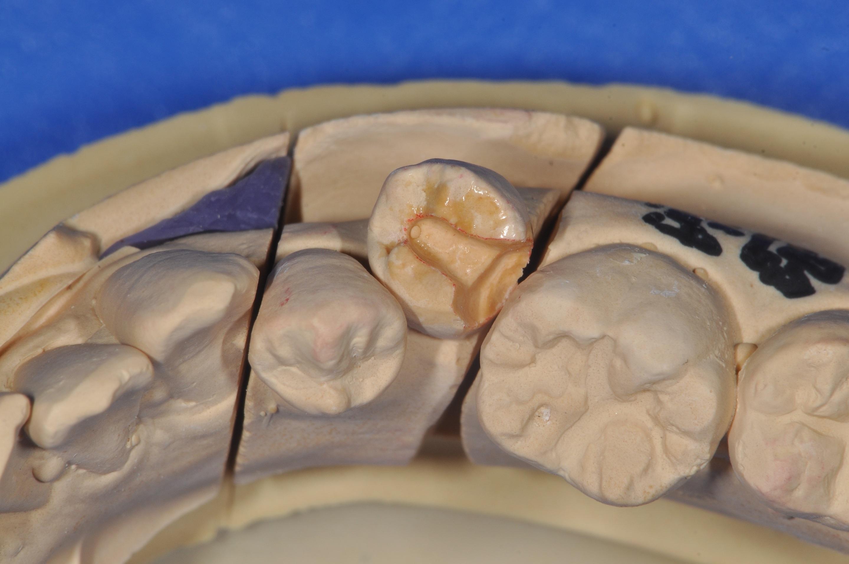 すきっ歯の治療01