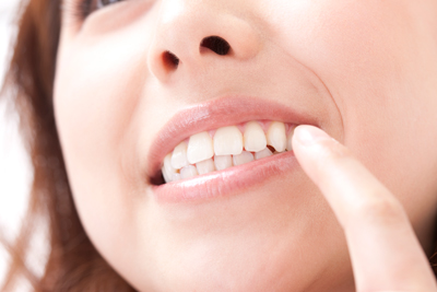歯茎が腫れている方、歯がグラグラしてきた方へ(歯周病治療)