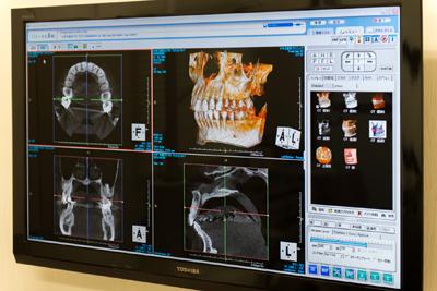 インプラントの治療について(歯を失ってしまった方へ)