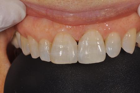すきっ歯の治療03