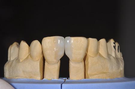 すきっ歯の治療04