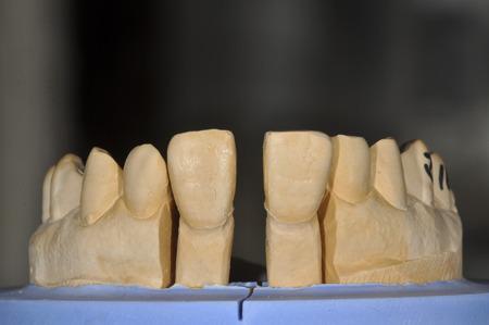 すきっ歯の治療02